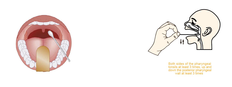 Coronavirus antigen rapid test Collection method of oropharyngeal swab